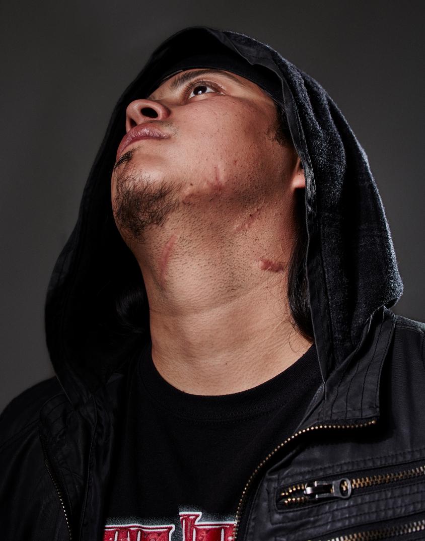6-kylefelter-scars.jpg, Kyle Felter